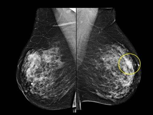 What's Happening While I Wait for my Mammogram Results?